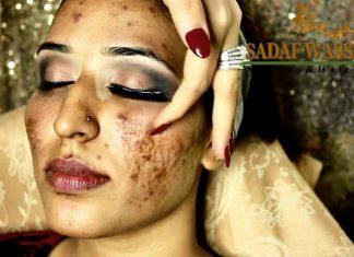 Akneler Makyajla Nasıl Kapatılır? - Makyaj - sivilce nasıl kamufle edilir sivilce yaraları nasıl kapatılır sivilceli ciltler için makyaj ürünleri sivilceli yüzler için fondoten
